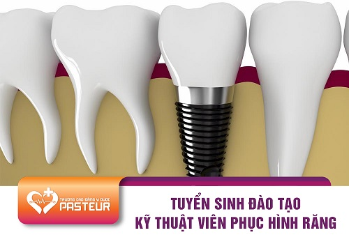 Tìm hiểu đối tượng tuyển sinh Trung cấp Kỹ thuật phục hình răng TP.HCM năm 2018