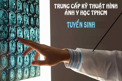 Đào tạo Kỹ thuật viên hình ảnh Y học Cao đẳng Y Dược Pasteur TP.HCM