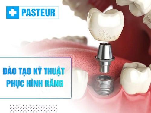 Đào tạo Kỹ thuật viên Phục hình răng
