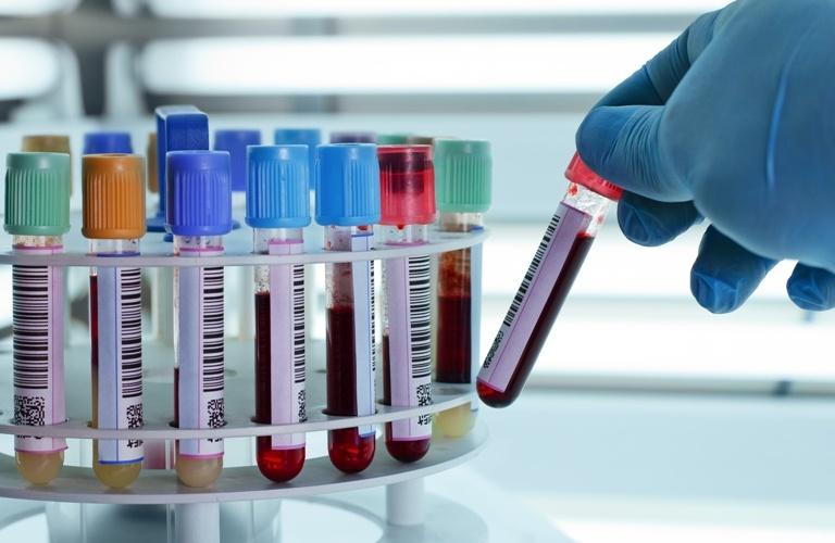 Xét nghiệm máu tổng quát
