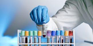 Mức lương của ngành Kỹ thuật xét nghiệm Y học là bao nhiêu?