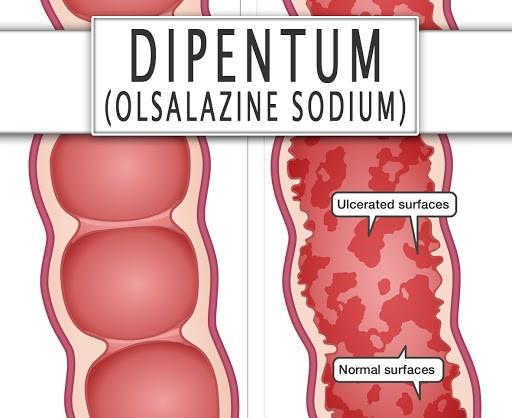 Olsalazine có tác dụng điều trị một số bệnh về đường ruột